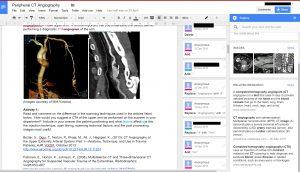 docs-explore-edited
